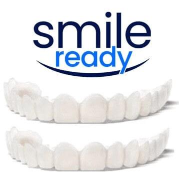 Smile Ready prezzo